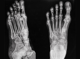 Service d'orthopédie-traumatologie: conférences interservices pluridisciplinaires