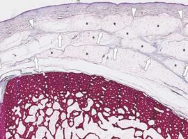 Le système fascial musculo-squelettique dans les maladies auto-immunes