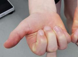 Une cause rare de limitation de la flexion des articulations et de déformation des vertèbres