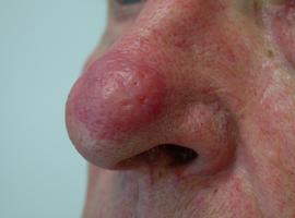 Etude de cas: un nez d'ivrogne?