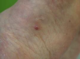 Une curieuse lésion du pied