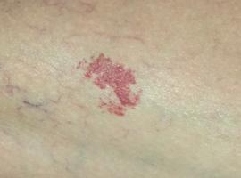 Une lésion serpigineuse rouge