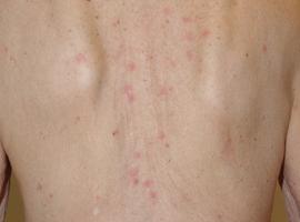 Votre plus belle image: Même si ça démange: utilisez votre dermatoscope!