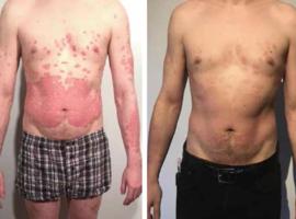Psoriasis au quotidien: Aprémilast (Otezla®, Celgene), simple et efficace