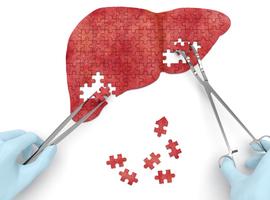 Régorafénib en cas de carcinome hépatocellulaire après progression sous sorafénib
