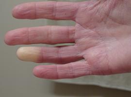 Hoe weet je of een raynaudfenomeen een bindweefselziekte voorspelt?