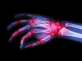 Behandeling van artritis: een echte revolutie in de reumatologie
