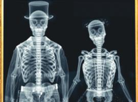 """""""Elke Belg ondergaat jaarlijks een radiografisch onderzoek"""""""