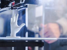 UZ Gent wil 3D protheses printen