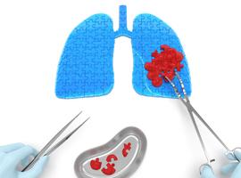 Cancer du poumon non à petites cellules et radiothérapie stéréotaxique