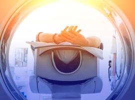 Radiothérapie brève et témozolomide chez des patients âgés atteints d'un glioblastome