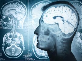 Les antioxydants efficaces aussi contre le vieillissement cérébral