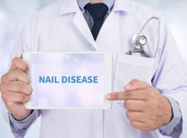 Waarom aandacht voor de nagels bij sclerodermie?