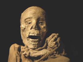Mummies bewerken het imago van atherosclerose
