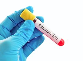 Pourquoi l'albumine sérique est un marqueur utile en cas de SCA