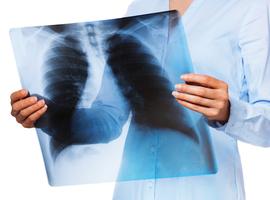 La pneumonie est-elle un facteur de risque d'insuffisance cardiaque?