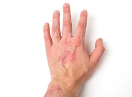 Van psoriatische artritis naar coronaire atherosclerose