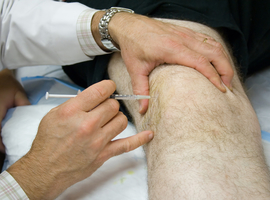 Fysiotherapie versus corticosteroïde-injecties bij gonartrose