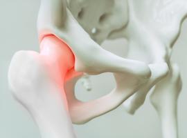 Doeltreffend, goed verdragen en veilig voor degewrichten: fasinumab bij osteoartritis