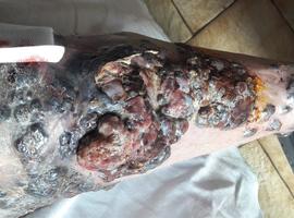 Cas clinique: une tache cutanée plantaire