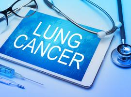 De elektronische neus, een biomarker in opkomst bij de diagnostiek en behandeling van longkanker