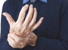 Klinisch beleid bij psoriasis artritis