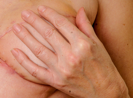 Reconstruction mammaire après chirurgie conservatrice pour un cancer du sein