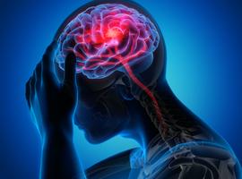 22es Rencontres de Neurologies: belangrijke punten in de vasculaire neurologie in 2020