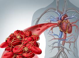 Lange mensen lopen groter risico op trombose