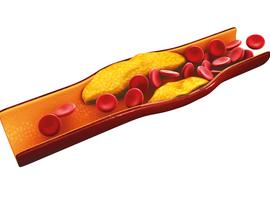 Een nieuwe behandeling tegen cholesterol