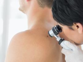 Le nombre de tumeurs malignes de la peau augmente de 5 à 9% par an en Belgique