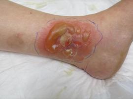 Dermatite de contact allergique et crèmes au cétomacrogol