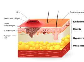 EGFR et carcinome spinocellulaire