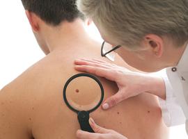 Des chercheurs belges identifient la cause de récidive d'un type de cancer de la peau