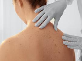 1.500 Belgen gaan deze week langs bij dermatoloog voor gratis huidonderzoek