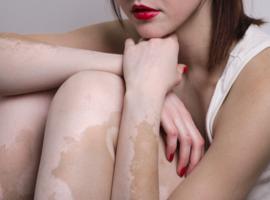 Journées dermatologiques de Paris