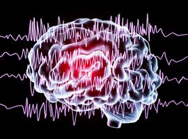 L'UZ Leuven expérimente avec succès un nouveau traitement au laser contre l'épilepsie