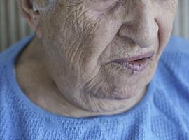La première semaine de la paralysie faciale en Belgique se tiendra début mars