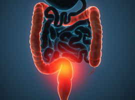 Une molécule naturelle pour venir soutenir un traitement contre le cancer du colon (ULg)