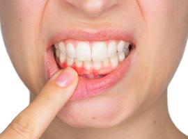 Invloed van westers voedingspatroon op het ontstaan van gingivitis