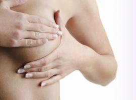 Implants mammaires et risques de lymphome : la RBSPS recadre