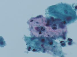 Un diagnostic surprenant suite à un saignement après la ménopause