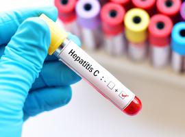 Le nombre de cas d'Hépatite C en Belgique moins élevé que supposé (Sciensano)
