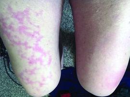 Covid-19: nieuwe huidsymptomen...