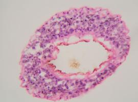 Beïnvloeden van nakomelingen parasiet biedt perspectief voor aanpak tropische ziekten