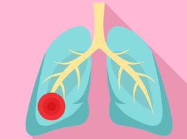 Quelle stratégie thérapeutique dans la CAP (Community Acquired Pneumonia)?