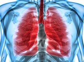 Une spin-off de l'ULB lève 5,6 M pour développer un traitement contre le cancer du poumon