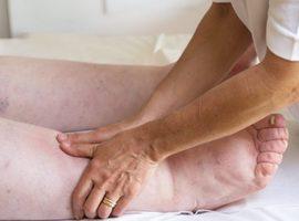 Lymphœdème : intervention de l'INAMI dans le coût d'un traitement « conservateur » par physiothérapie