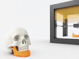 3D geprinte implantaten: KCE-rapport soms al verouderd