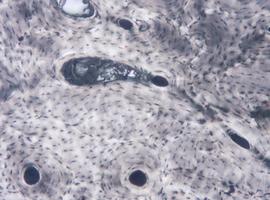 Cultiver du tissu osseux organique à l'échelle industrielle désormais possible (Leuven)